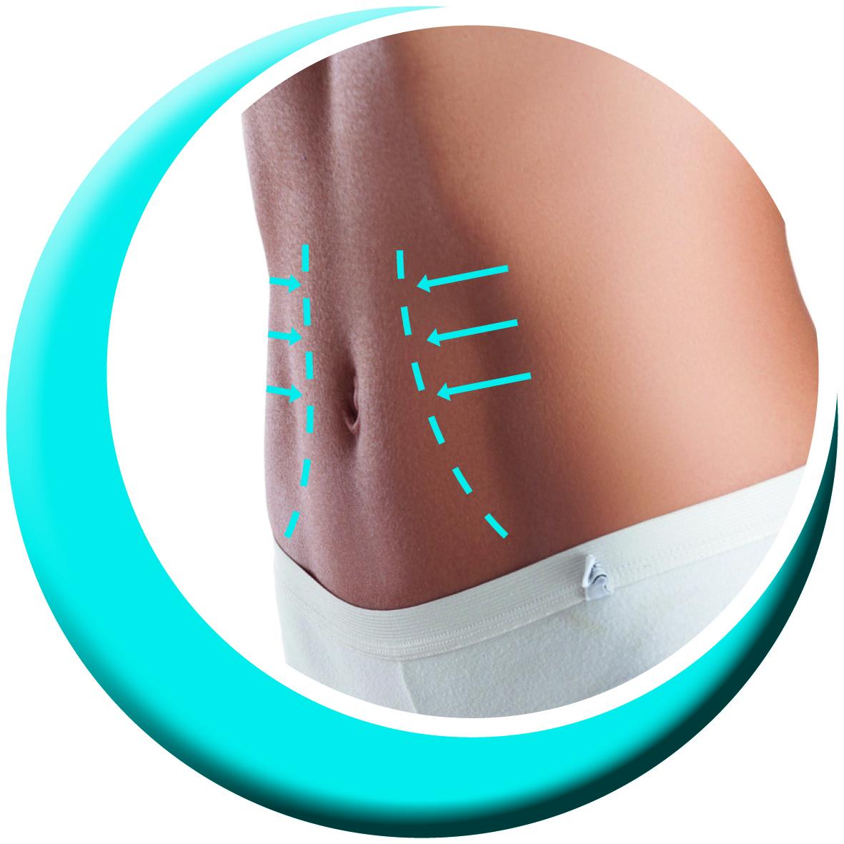 3D-Lipomed demnächst verfügbar